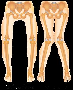 Physiotherapie Deuser & Bauer Mannheim Kniegelenk Anatomie Beinachse