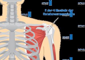 Physiotherapie Deuser Bauer Rotatorenmanschette Muskuläres Ungleichgewicht Schulter