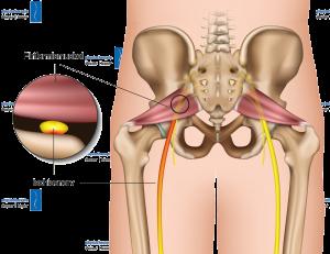Physiotherapie Deuser Bauer Ausstrahlende Schmerzen Bein Ischialgie