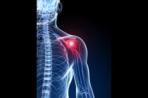 Physiotherapie Deuser & Bauer Schulterschmerz Muskuläres Ungleichgewicht