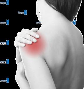 Physiotherapie Deuser Bauer Muskuläres Ungleichgewicht Schulter Schulterschmerzen